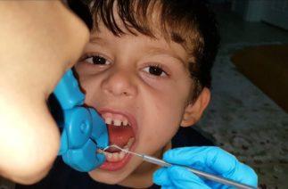 Cafer'e komik vampir diş çekimi yaptık-tooth extraction-parodi