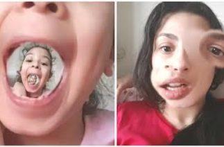 INSTAGRAM Yüzlerimiz Komik,Snap Yüz Değiştirme.Fun Twins.